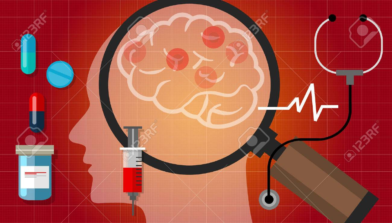 Alzheimer Parkinson Cáncer Cerebral Medicamento Anatomía Salud La ...