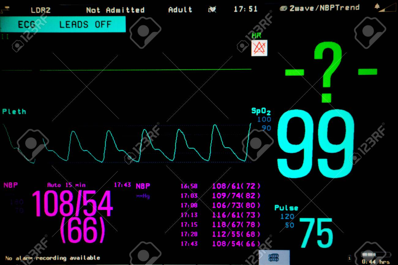 Normal heart function on pulse oximeter pleth graph bar on monitor