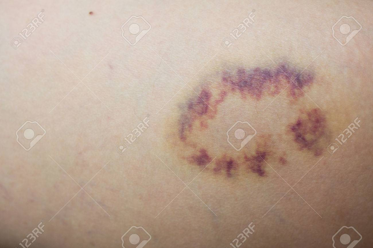 Closed up violet lesion on skin - 64555493