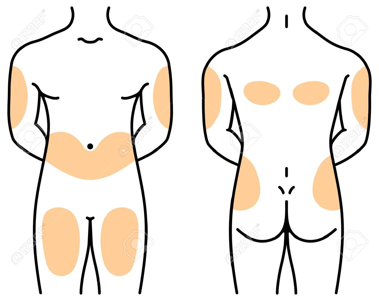 Insulin injection sites on human body royalty free cliparts insulin injection sites on human body stock vector 53599092 pooptronica Choice Image