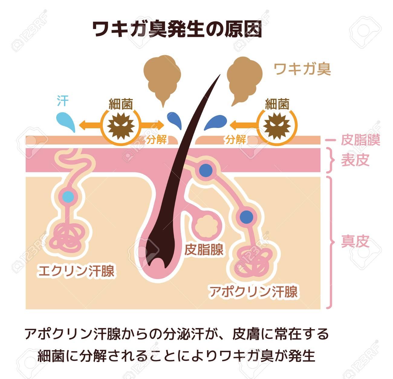 Cause of body odor illustration (Japanese)