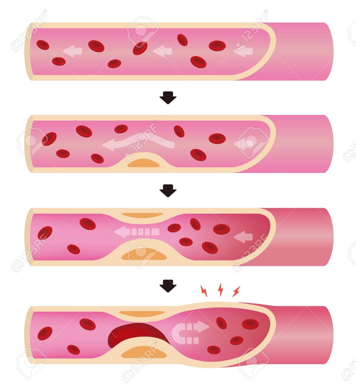Progression of arteriosclerosis illustration (No text) - 93809705