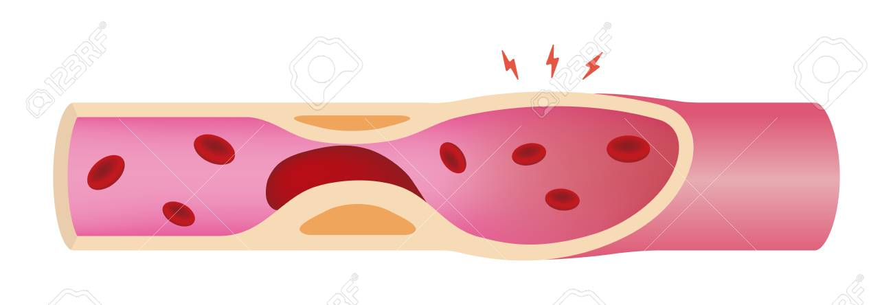 Artery clogged with Blood clot illustration - 93809810