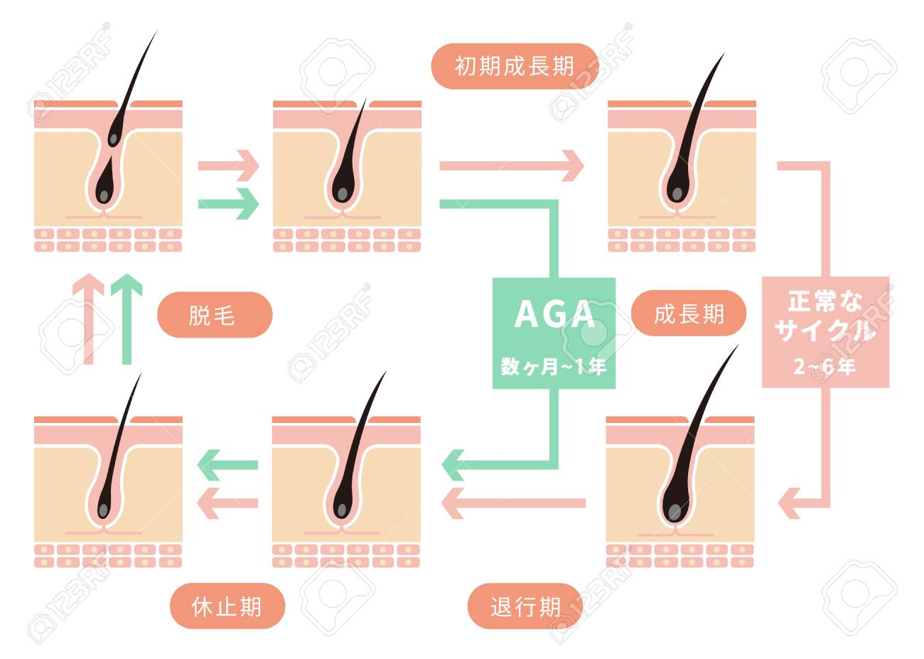 Comparative illustration of normal hair cycle and AGA (androgenetic alopecia). - 97893335