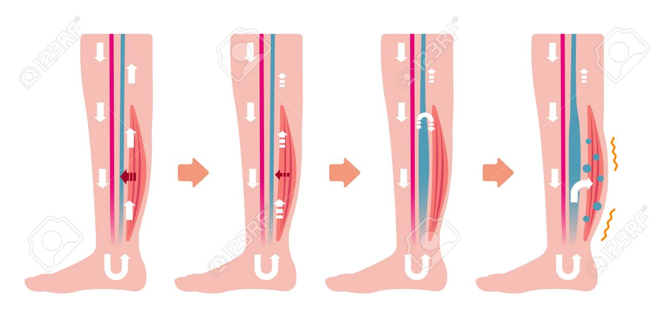 Cause of swelling (edema) of the legs. Flat illustration (no text) - 125320896