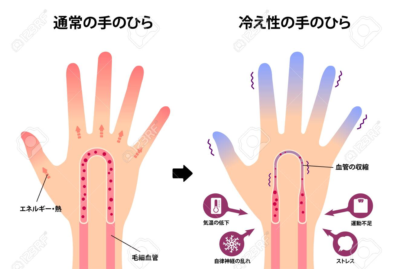 Comparison illustration of normal hand and cold hand ( sensitivity to cold, cold fingertips) / Japanese - 141934083
