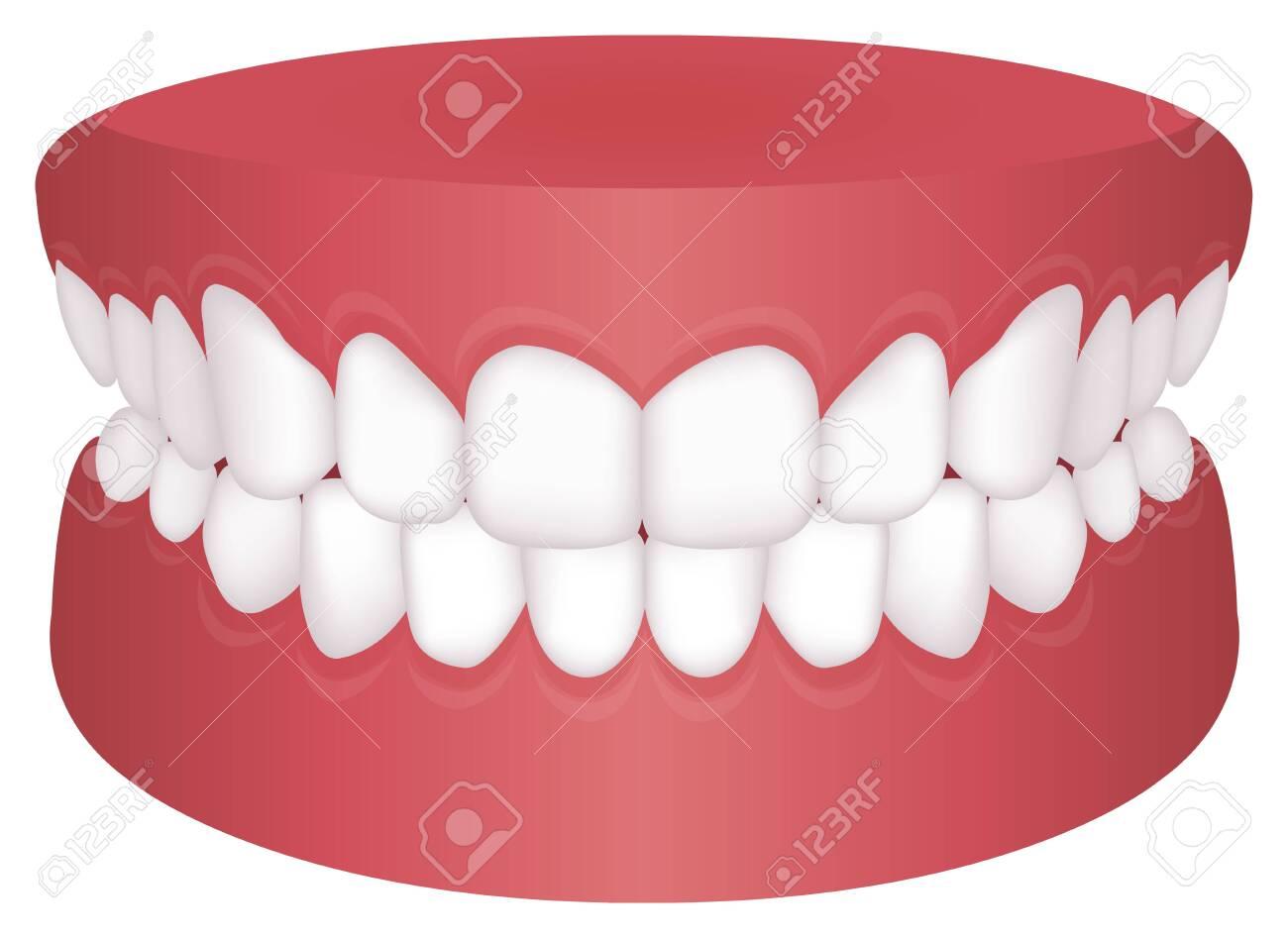 Teeth trouble ( bite type ) vector illustration /Normal Bite - 147719715