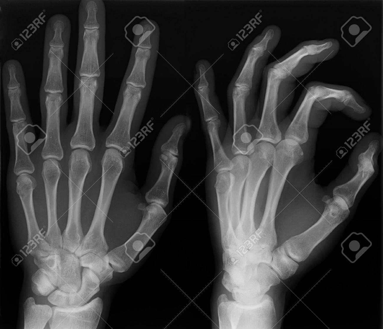 radiografía de la mano izquierda disparar en dos versiones fotos