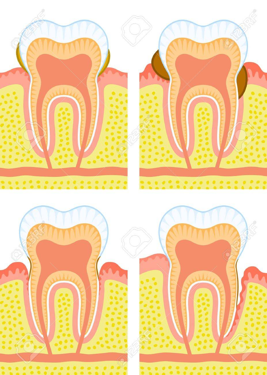 Internal structure of tooth Stock Vector - 15774468