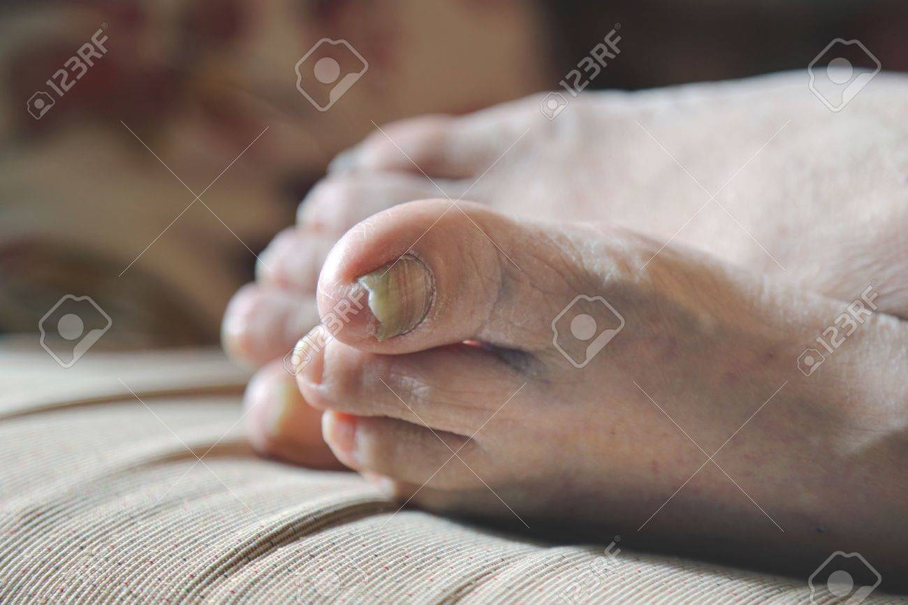 damaged nails of woman s feet Stock Photo - 18132909