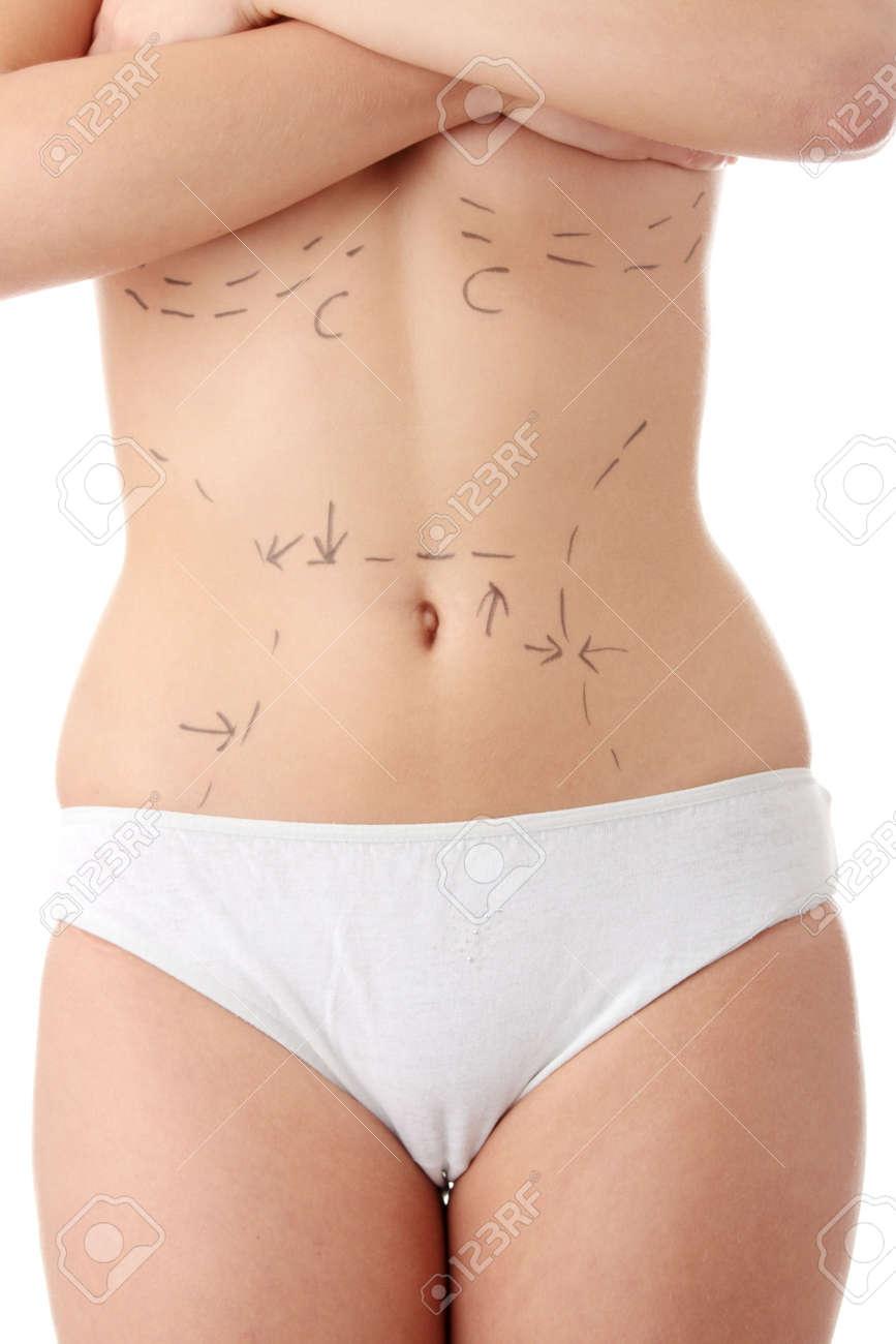 白人の女性の腹部の腹部の整形手...
