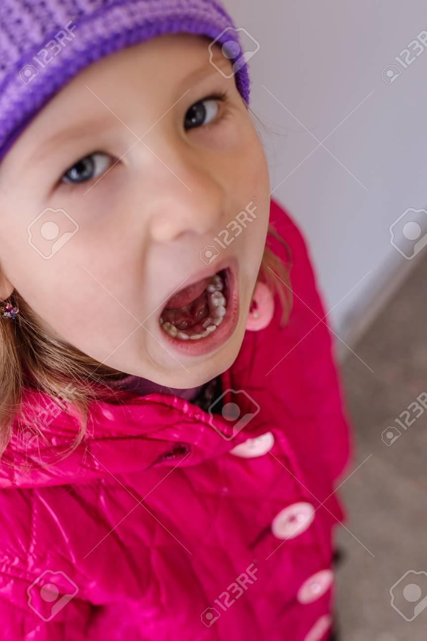 Adult Permanent Teeth Coming In Behind Baby Teeth Shark Teeth