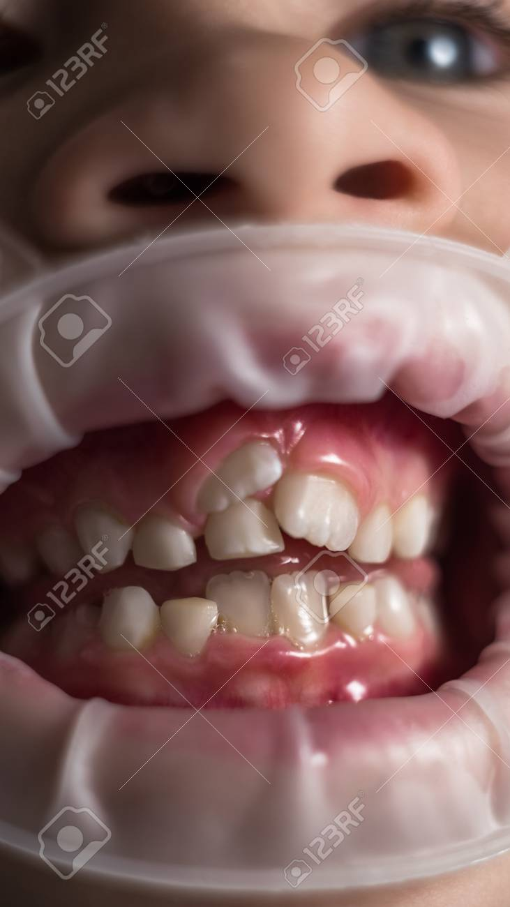 Adult Permanent Teeth Coming In Front Of The Child S Baby Teeth