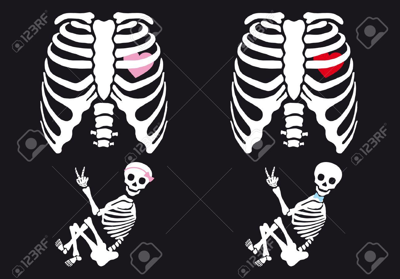 c157ba8ae Bebé Esqueleto Y Niña