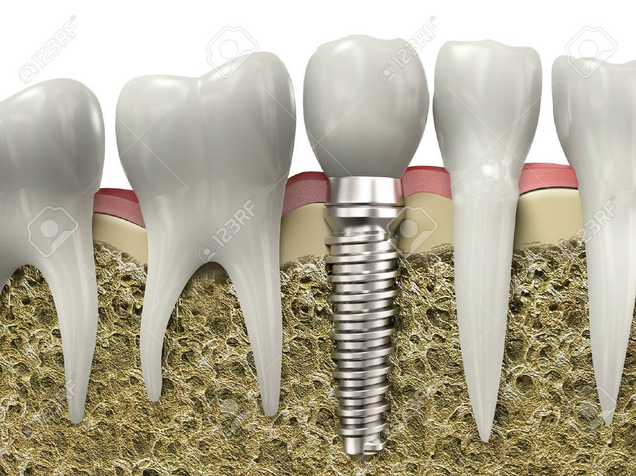 Very High Resolution 3d Rendering Of A Dental Implant Stock Photo Picture And Royalty Free Image Image 26754734