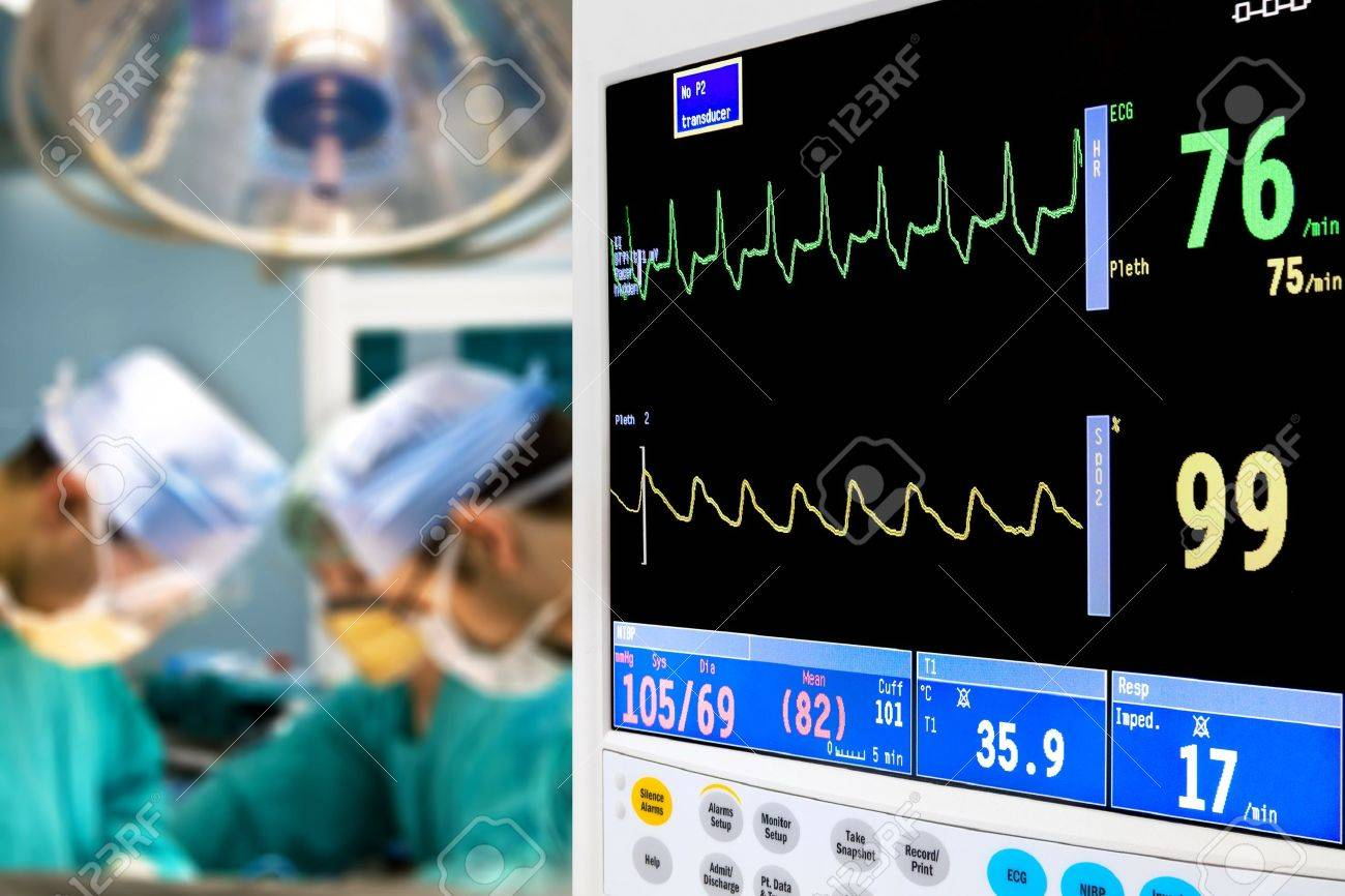 patient cardiogram monitoring in operation room Stock Photo - 9385863