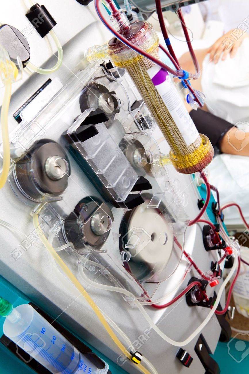 blood purification medical procedure (plasmapheresis, dialysis) with medical device. Stock Photo - 10553476
