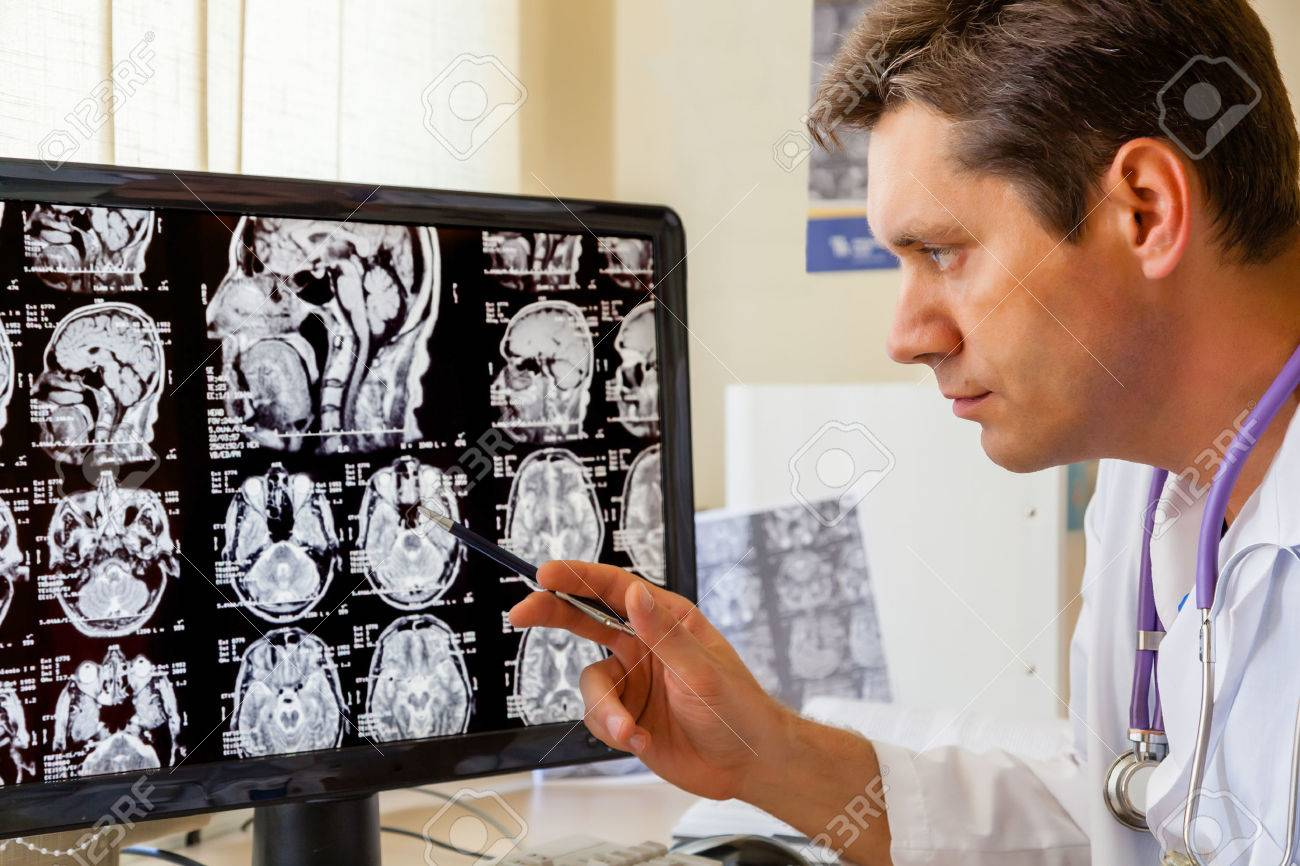 Doctor examining an MRI scan of the Brain on Monitior - 23328903