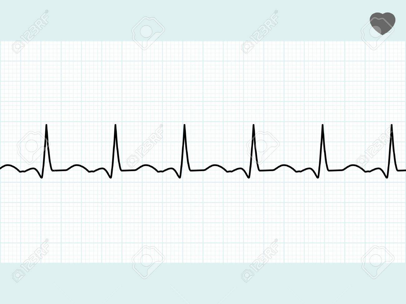 Normal electrocardiogram ECG. EPS 8 vector file included Stock Vector - 9570643
