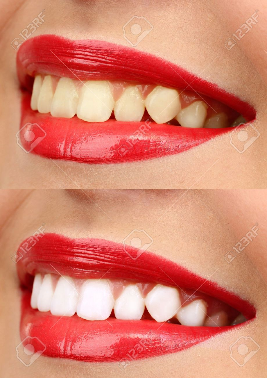 Teeth Whitening Comparison With Teeth Whitening