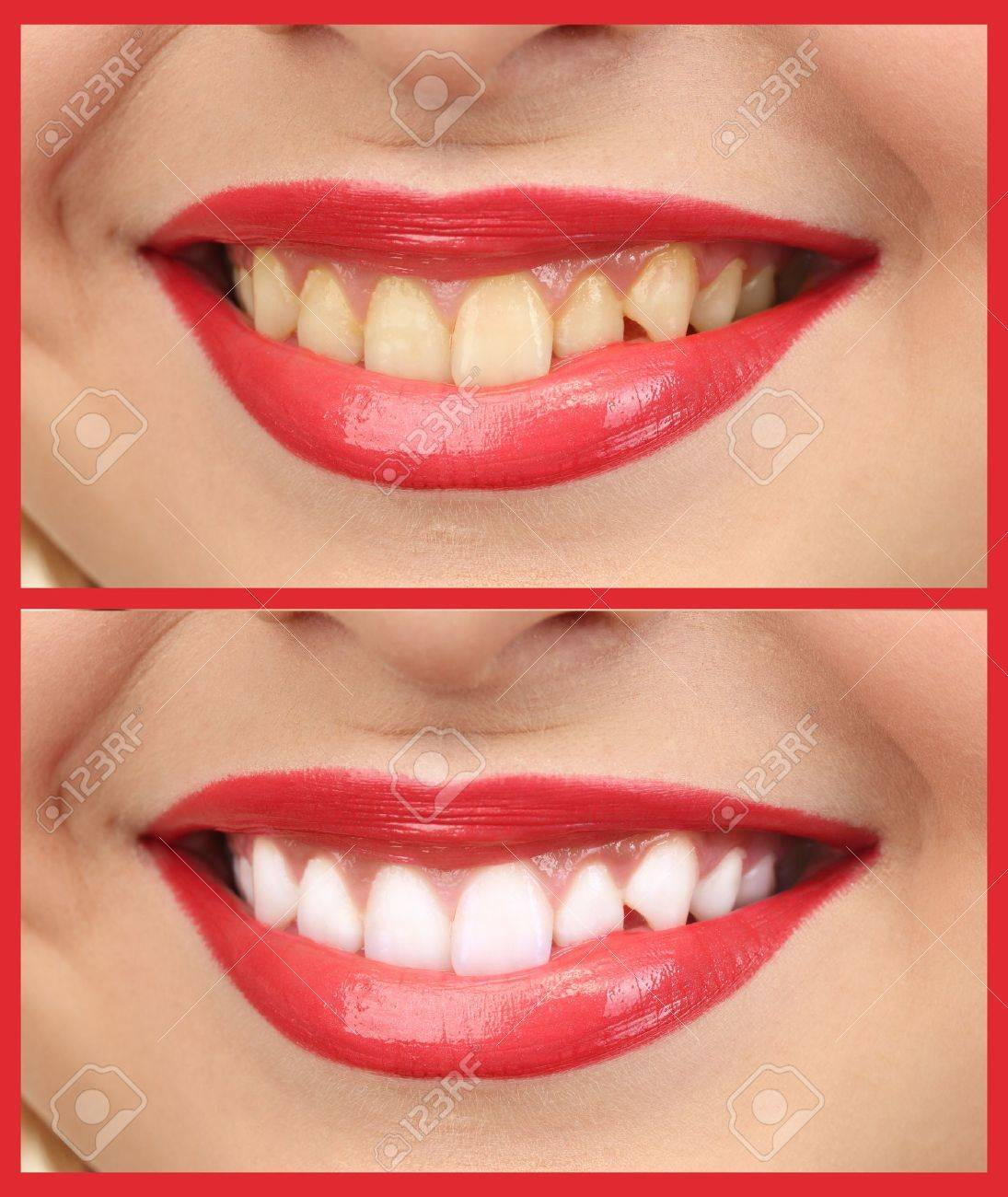 Women smile with teeth: whitening - bleaching treatment , before and after - 22023964