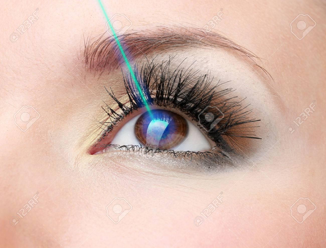 Laser vision correction. Woman's eye. - 26413644