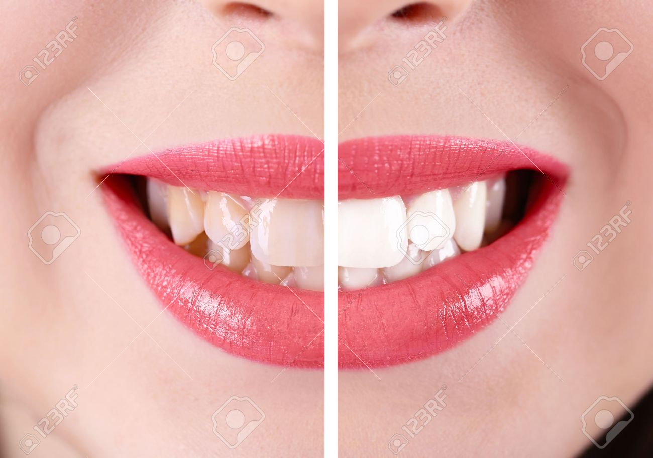 Smiling woman, teeth: before and after concept - 51811339