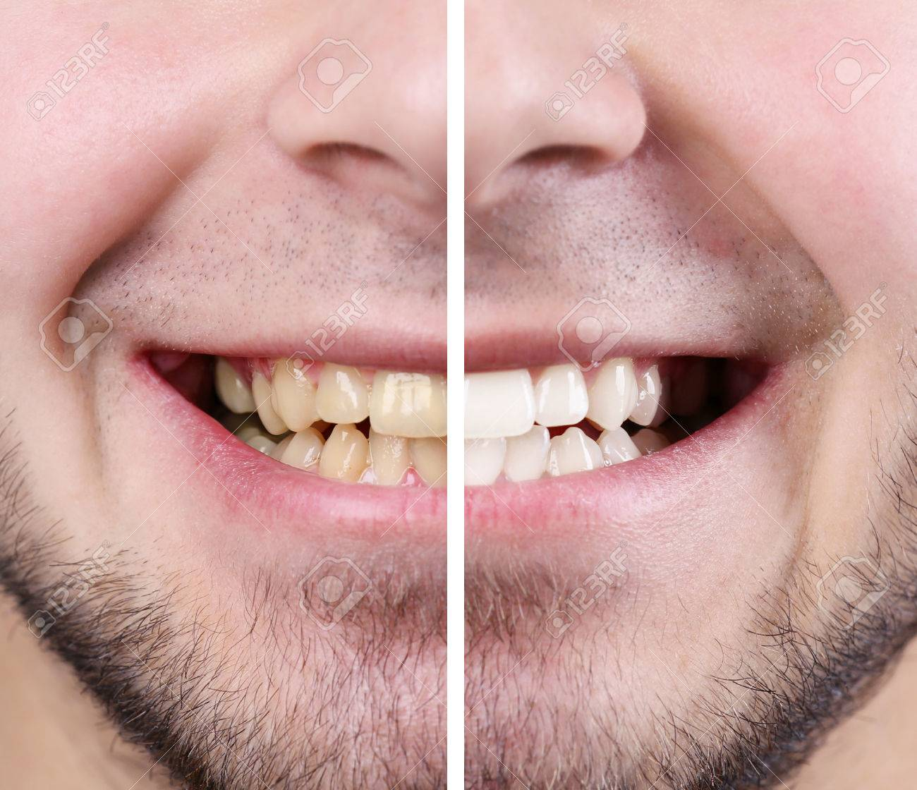 Smiling man: before and after concept - 52132562