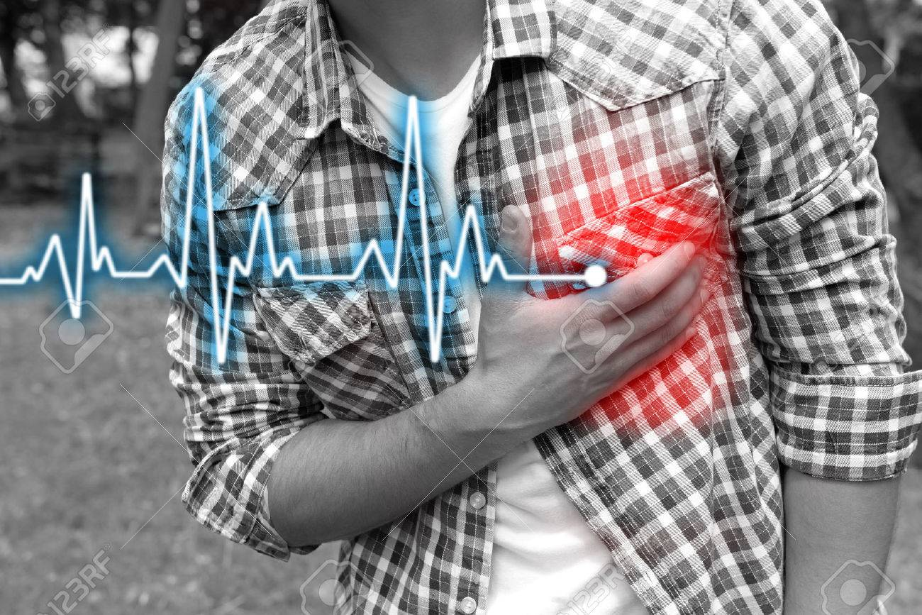 Man having chest pain - heart attack, outdoors - 52649785