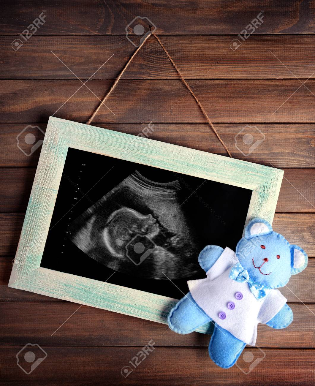 Vintage frame with ultrasound scan of baby on wooden background vintage frame with ultrasound scan of baby on wooden background stock photo 67369214 jeuxipadfo Gallery