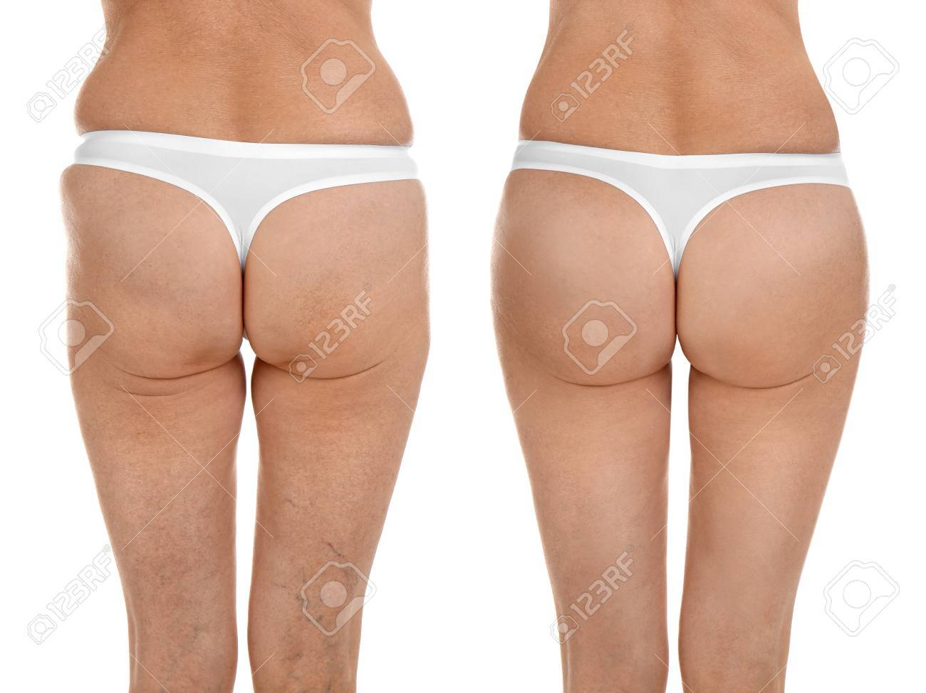 Mature woman body before and after liposuction  Plastic surgery