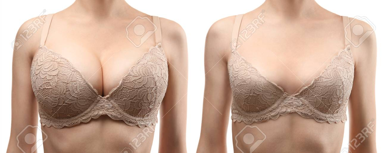 Woman Before And After Breast Size Correction On White Background