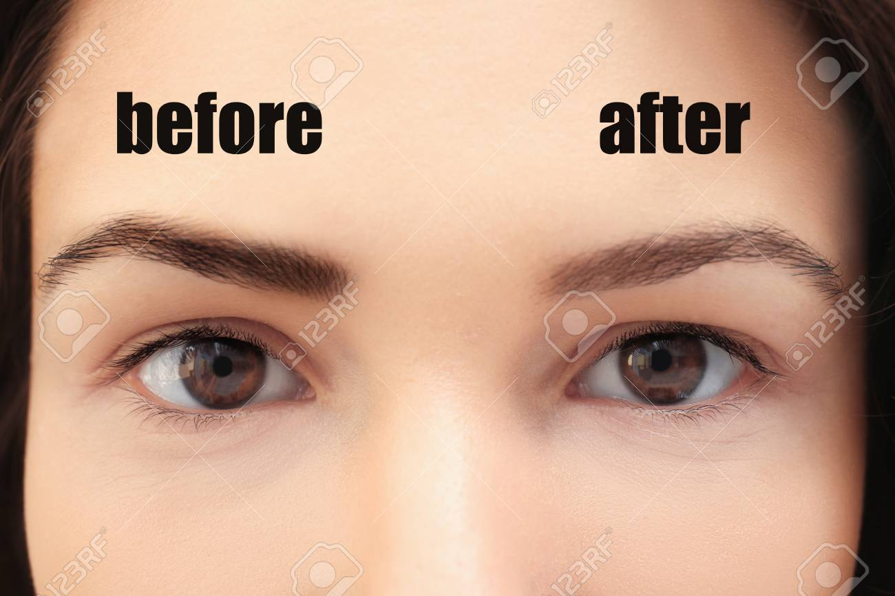 Woman Before And After Laser Tattoo Removal Procedure Closeup Stock