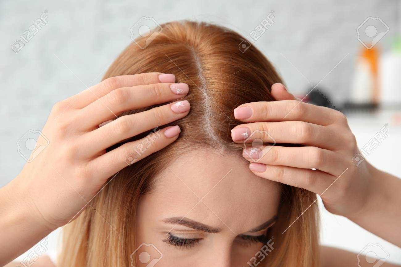 Young woman with hair loss problem, closeup - 106964860