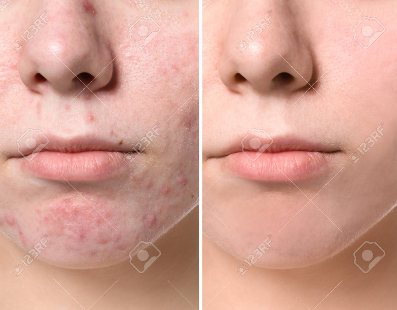 Young Woman Before And After Acne Treatment Closeup Skin Care