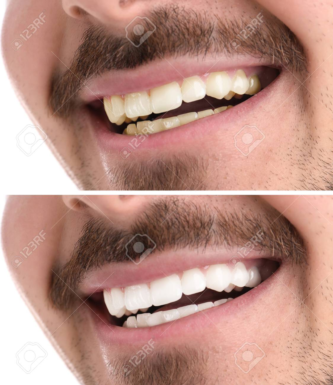 Smiling Man Before And After Teeth Whitening Procedure Closeup