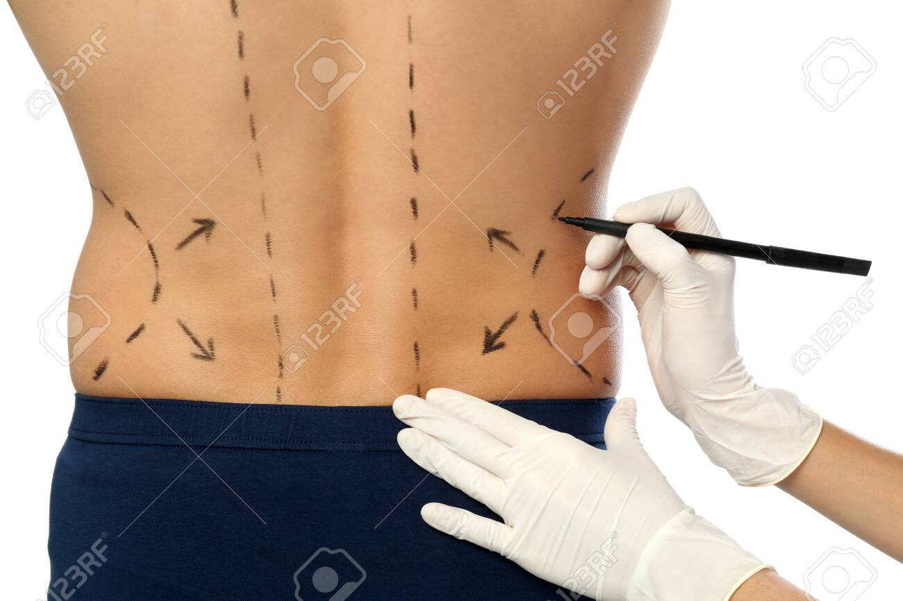 Doctor drawing marks on man's body for cosmetic surgery operation against white background, closeup - 127034444