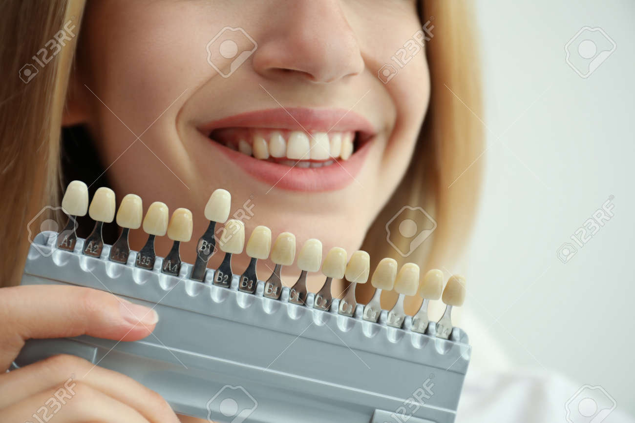 Woman matching teeth color with palette on white background, closeup. Cosmetic dentistry - 155447627