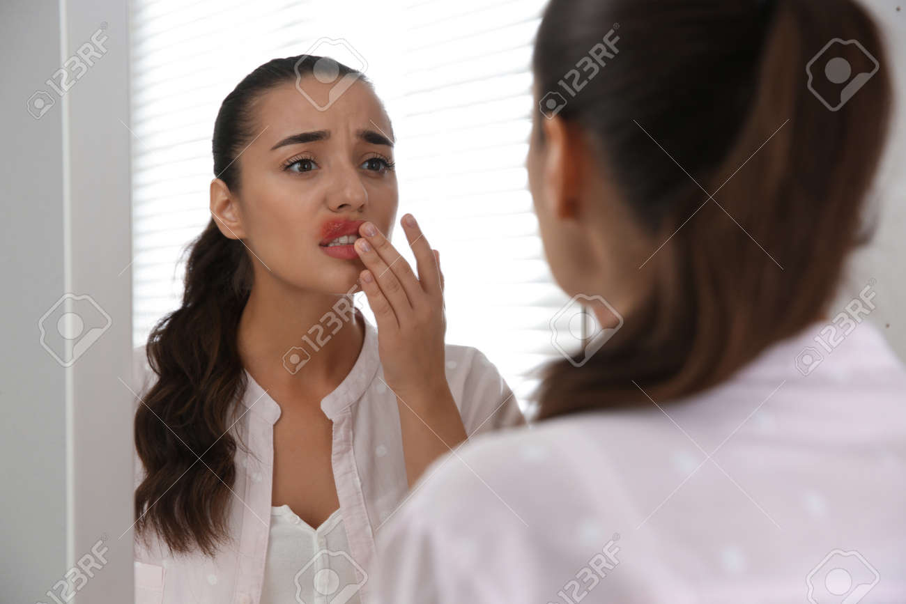 Young woman with herpes touching lips in front of mirror at home - 166814369