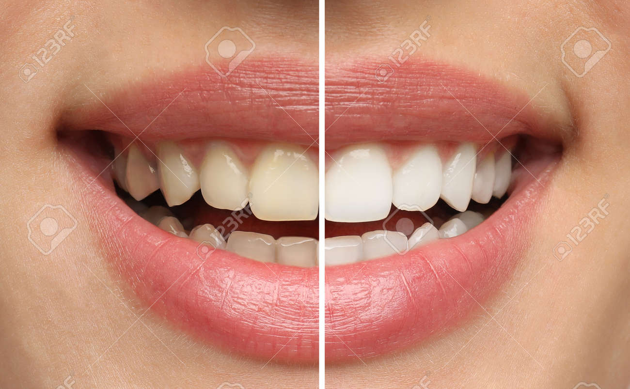 Collage with photos of woman before and after teeth whitening, closeup - 169712522