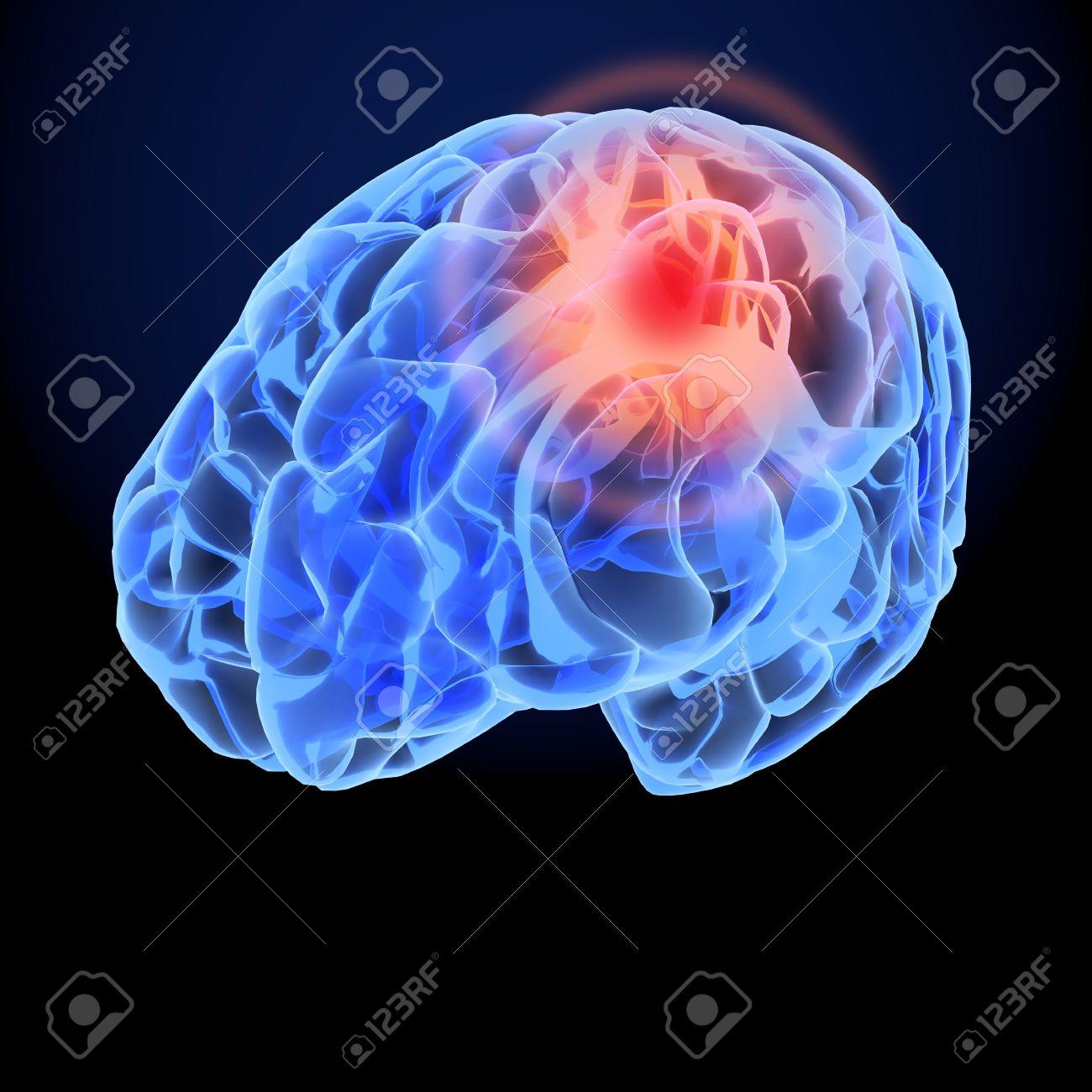 Kopfschmerzen X-Ray 3D-Modell. Gehirnneuronen Synapse, Anatomie ...