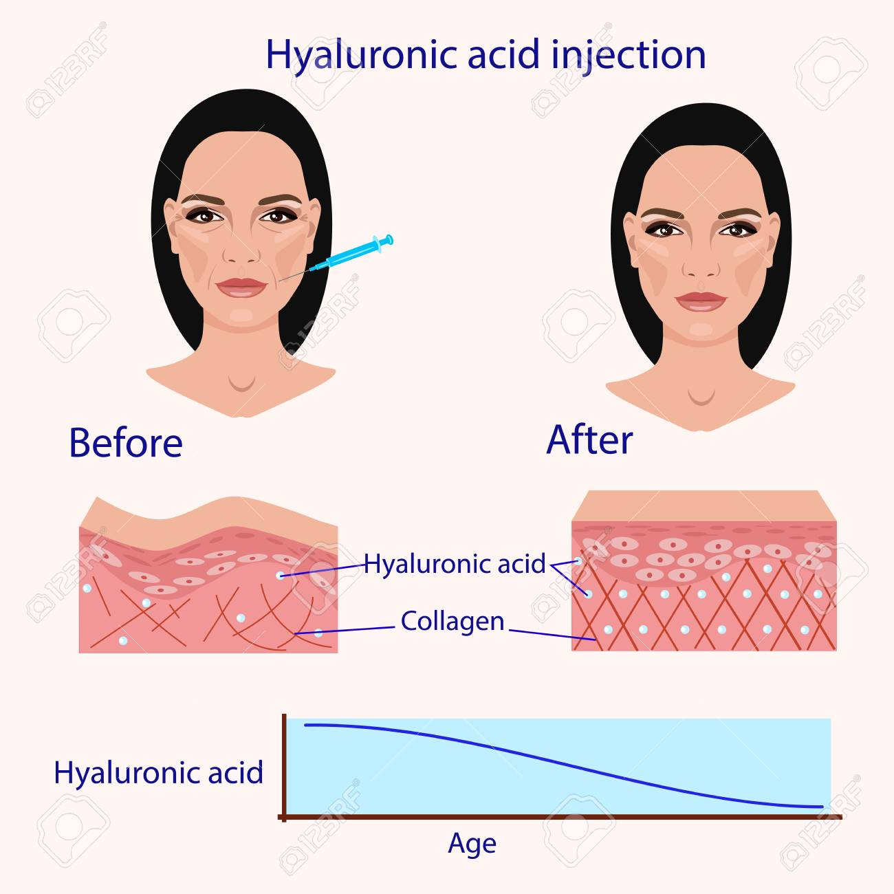 Hyaluronic acid injection, before and affect vector illustration