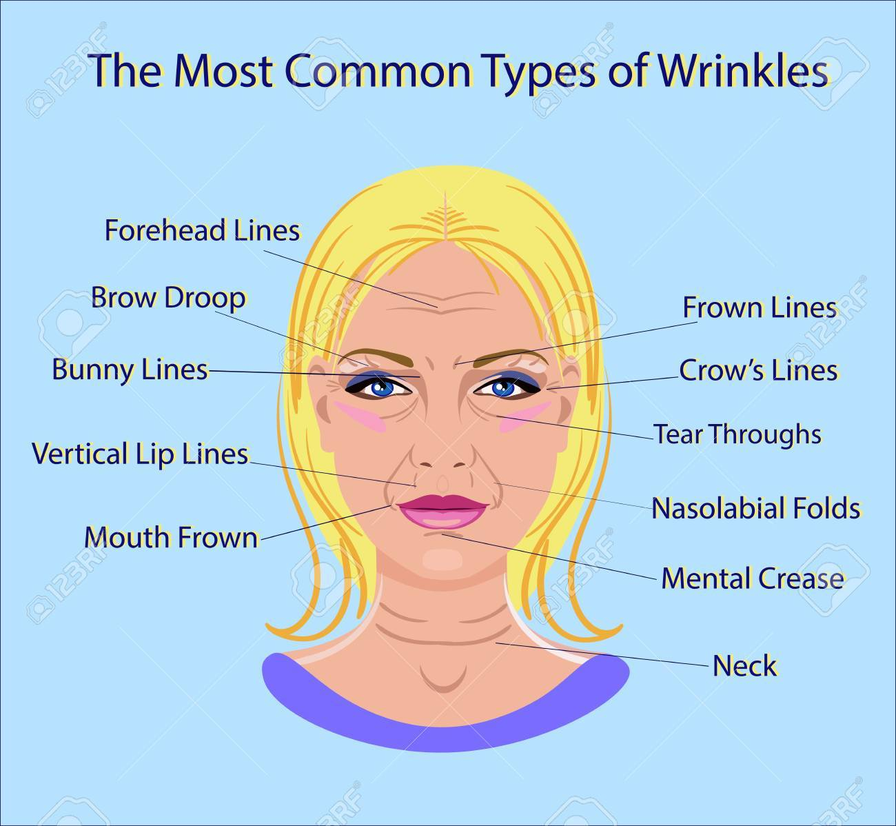 Common Types of Facial Wrinkles. - 88393769