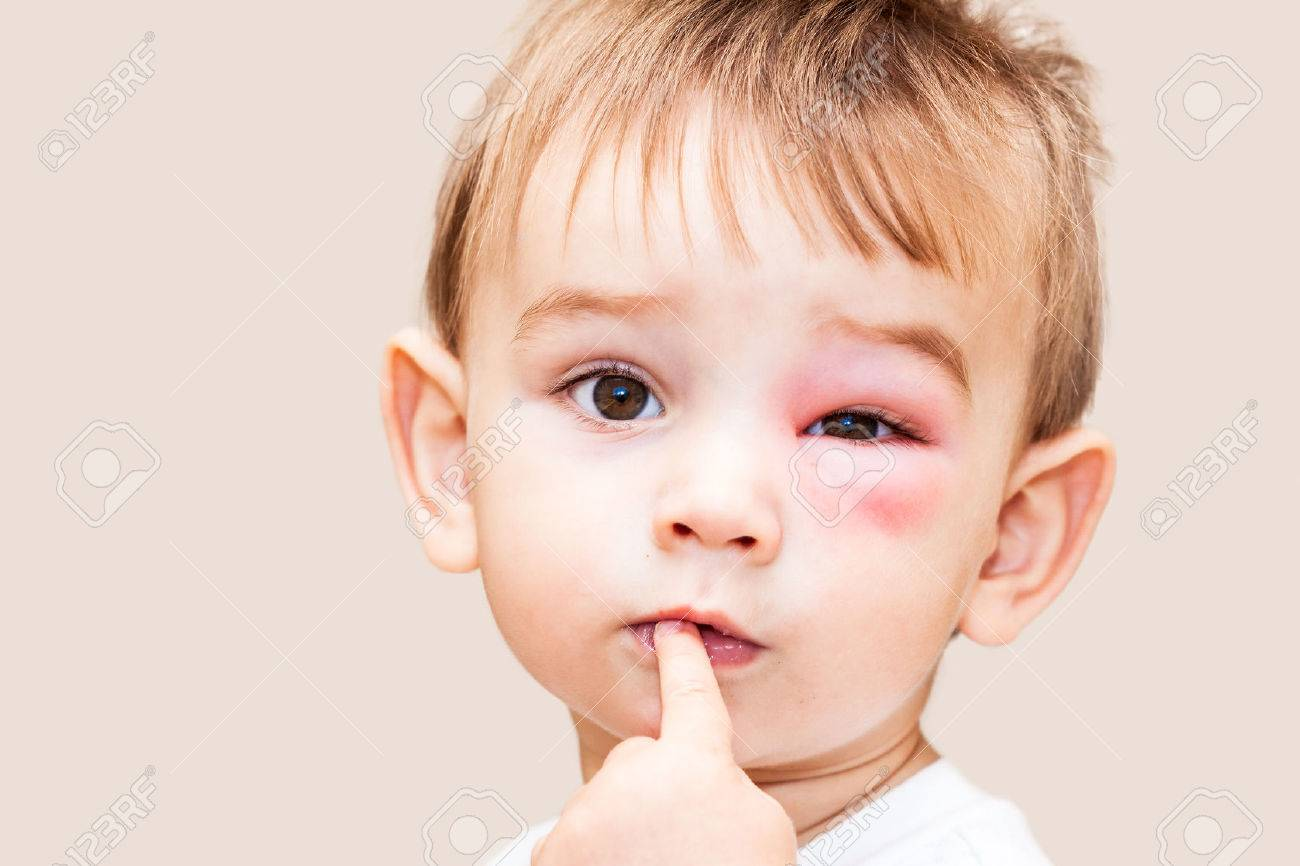 Little Boy - Dangerous Stings From Wasps Near The Eye - Isolated Image Stock Photo - 26924547