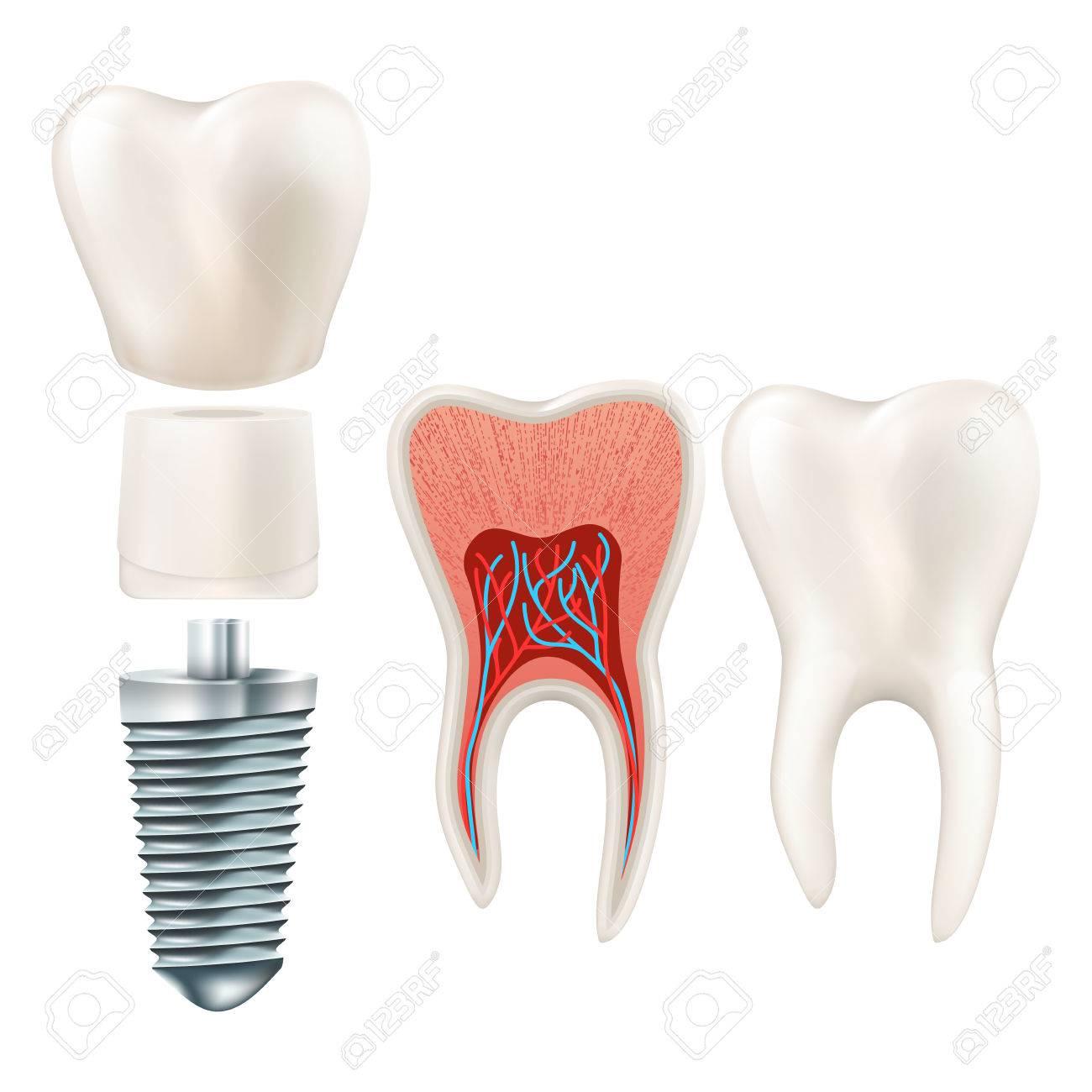 Zahn-Set. Menschliche Realistische Zähne Und Zahnimplantat. Und ...