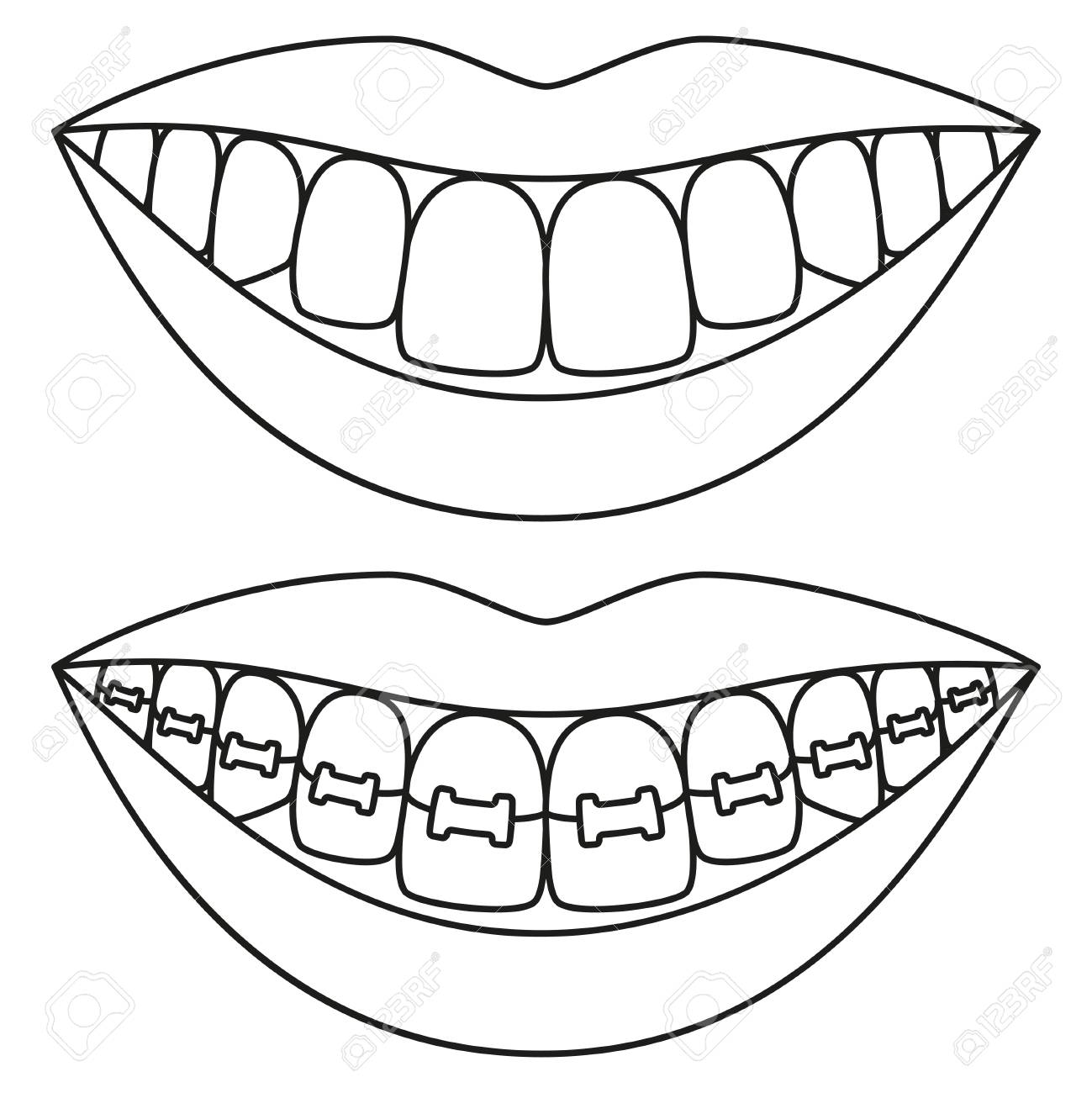 Line art black and white teeth aligning concept. Before and after..