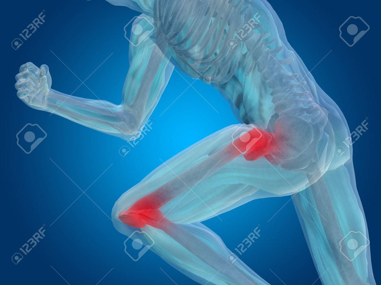 Conceptual human body anatomy articular pain on blue background - 35623085