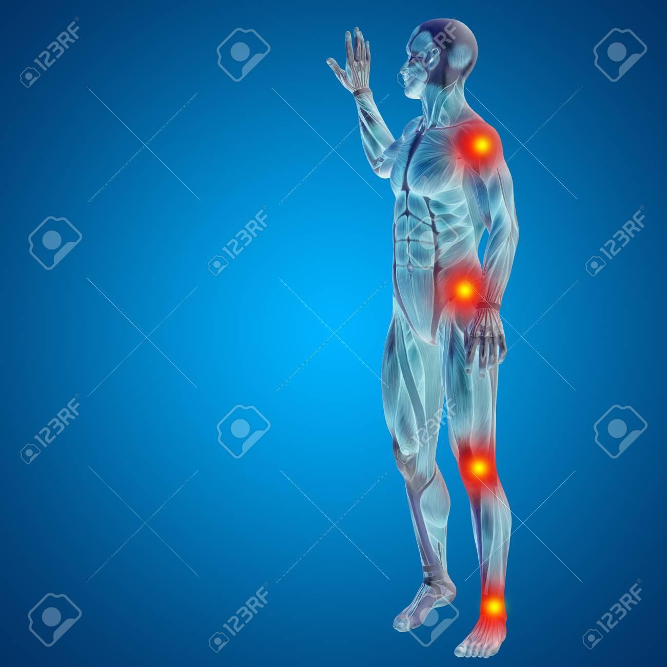 Conceptual Cuerpo Dolor En Las Articulaciones Hombre Anatomía Humana ...