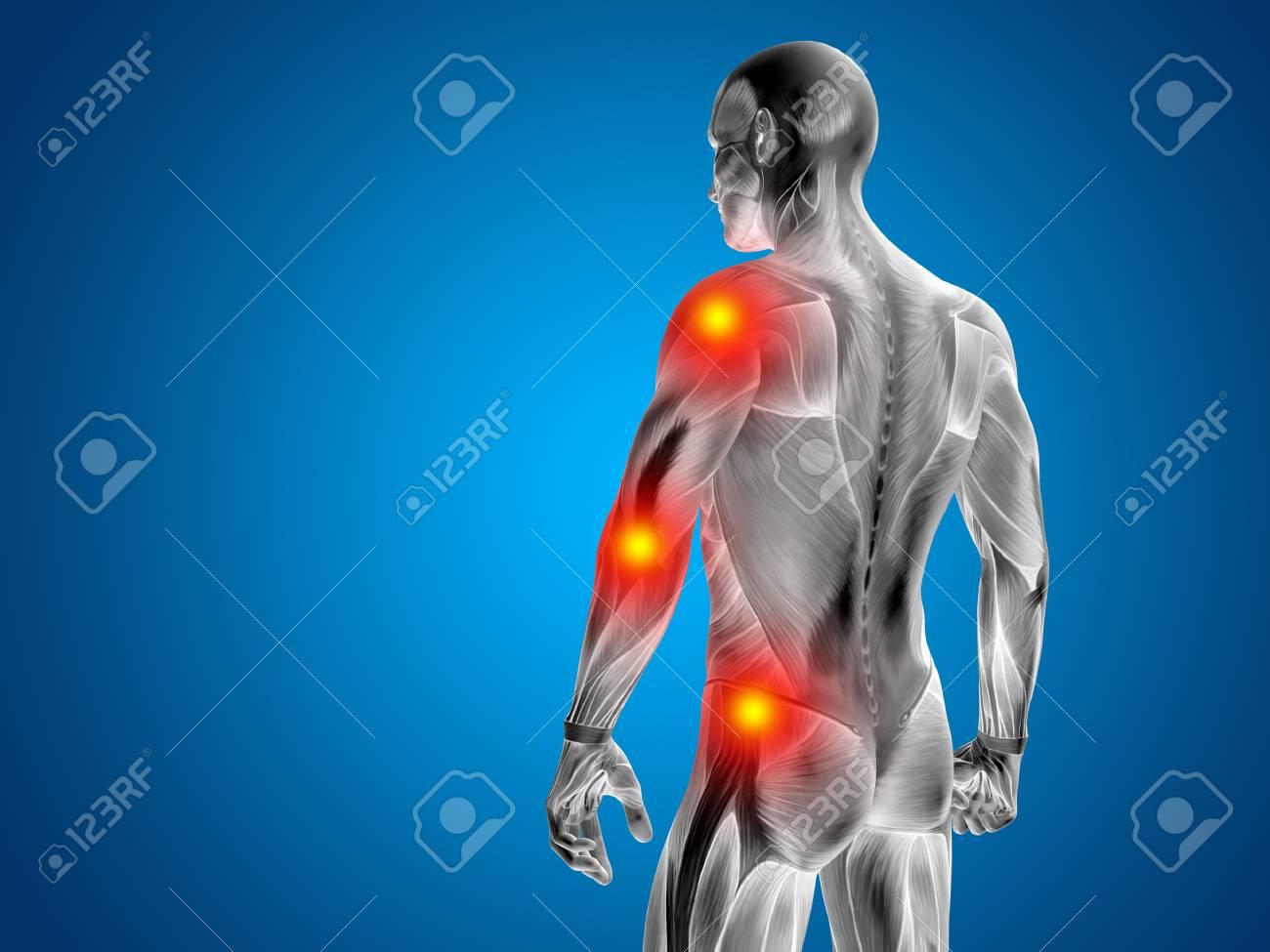 Konzeptionelle Menschliche Körper Anatomie Gelenkschmerzen Auf ...
