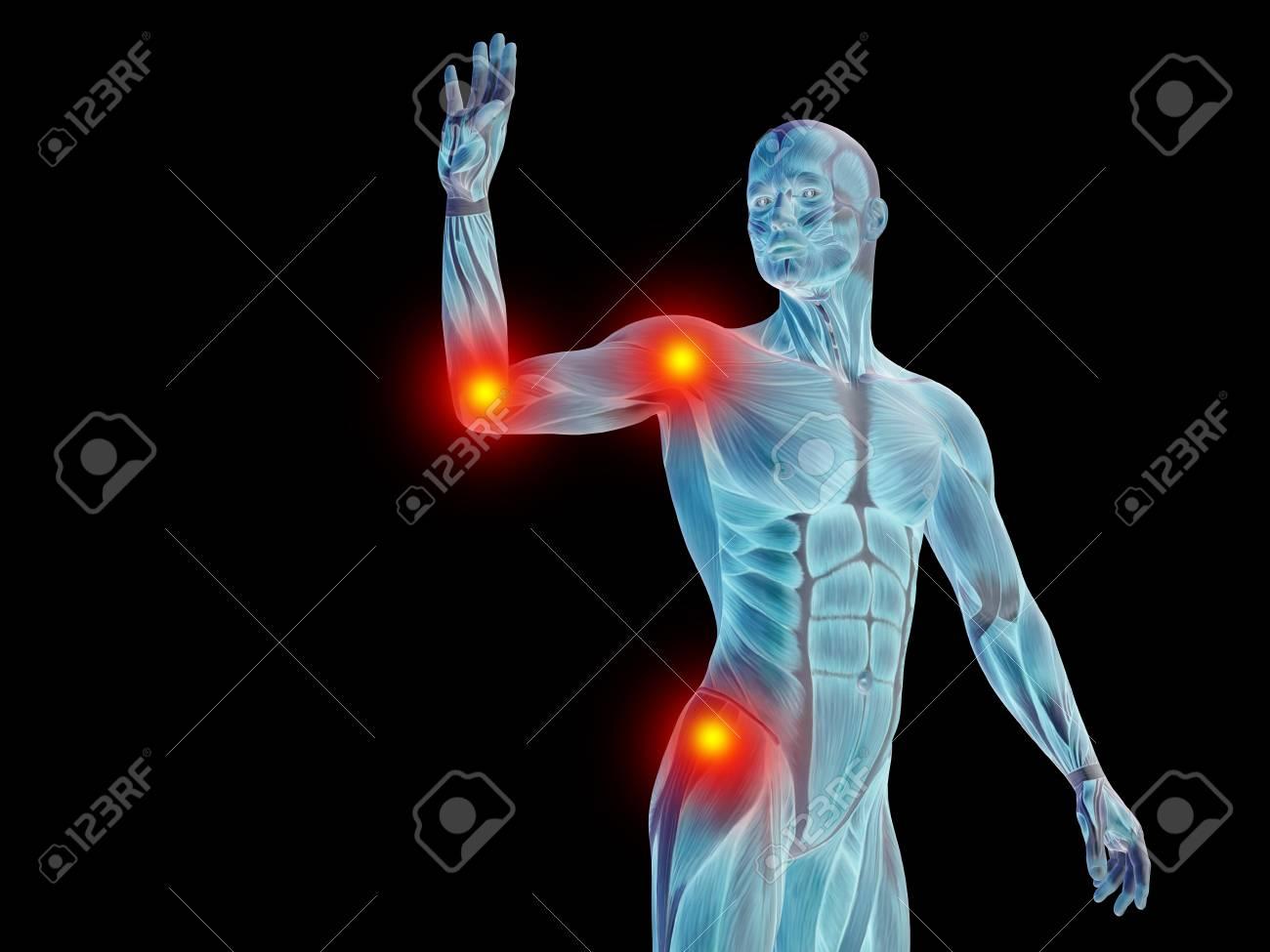 Konzeptionelle Menschliche Körper Anatomie Gelenkschmerz Isoliert ...